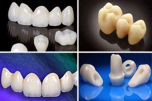 Khám phá độ bền của răng sứ thẩm mỹ các loại 3