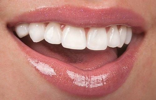 Làm răng sứ giá bao nhiêu? Có những loại răng sứ nào? 1