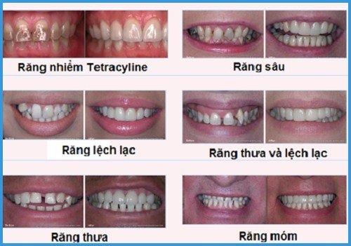 Làm răng sứ giá bao nhiêu? Có những loại răng sứ nào? 2
