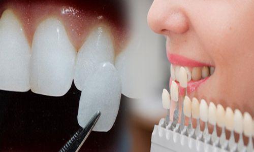 Làm răng sứ veneer theo quy trình 5 bước chuẩn nhất 1