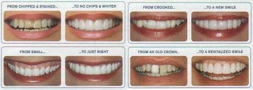 Làm răng sứ veneer theo quy trình 5 bước chuẩn nhất 2