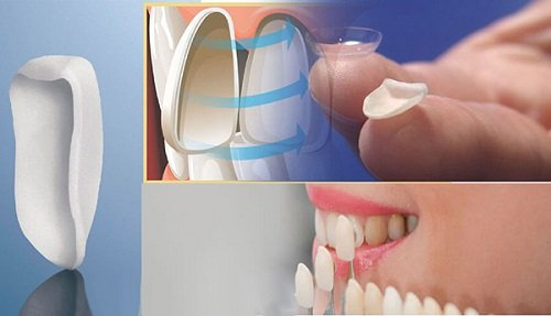 Làm răng sứ veneer theo quy trình 5 bước chuẩn nhất 4