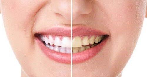 Răng sứ bị đổi màu - Nguyên nhân và giải pháp bạn nên nắm bắt 2