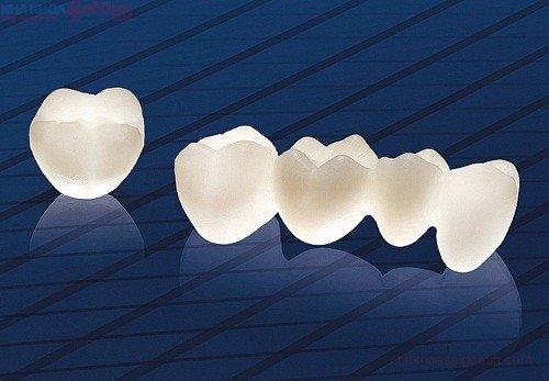 Răng sứ bị đổi màu - Nguyên nhân và giải pháp bạn nên nắm bắt 3