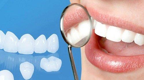 Răng sứ bị hỏng bạn nên biết nguyên nhân và cách khắc phục 1