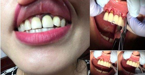 Răng sứ bị hỏng bạn nên biết nguyên nhân và cách khắc phục 2