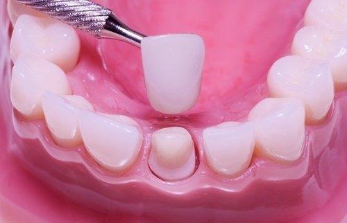 Răng sứ bị hỏng bạn nên biết nguyên nhân và cách khắc phục 3