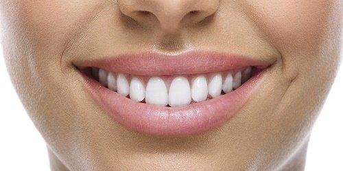Răng sứ bị nhức vì sao bạn cần chăm sóc đúng cách? 1