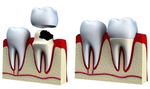 Răng sứ bị sâu không sau khi tiến hành bọc sứ? 3