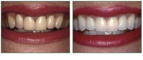 Răng sứ bị vàng - Bạn nhất định phải biết các nhân tố này 1
