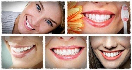 Răng sứ bị vàng - Bạn nhất định phải biết các nhân tố này 3