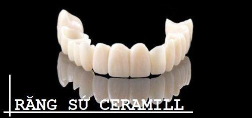 Răng sứ Ceramill cho bạn nụ cười trắng khỏe tự nhiên 1