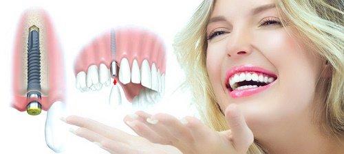 Răng sứ Ceramill cho bạn nụ cười trắng khỏe tự nhiên 4