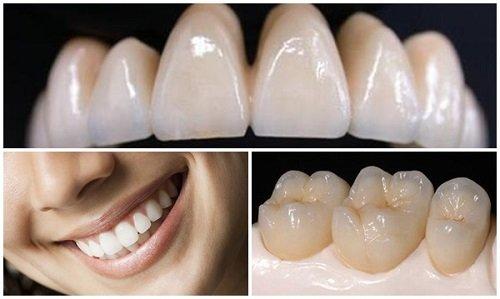 Răng sứ titan có mấy loại? Loại răng này có tốt không? 1