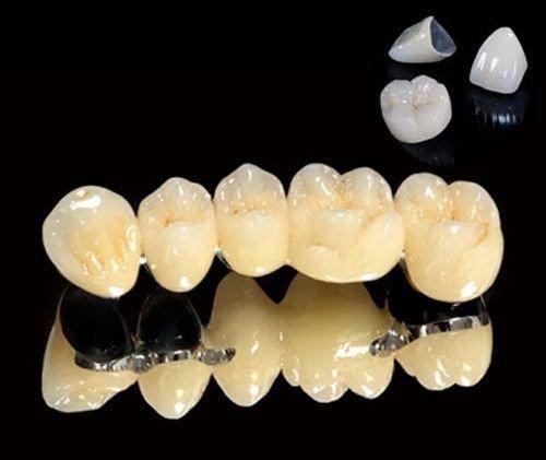 Răng sứ titan có mấy loại? Loại răng này có tốt không? 2