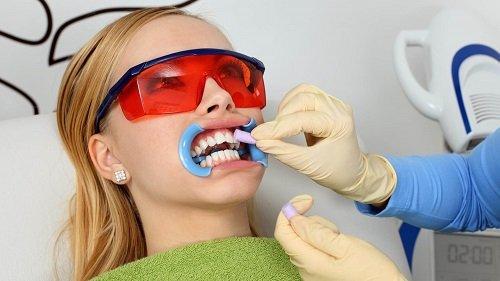 Tẩy trắng răng bằng đèn plasma có hại không? Tìm hiểu kỹ thông tin 2