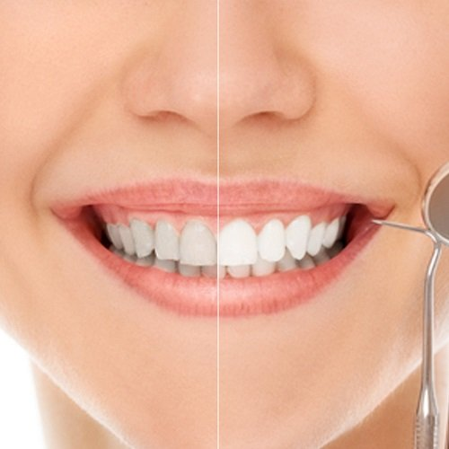 Tẩy trắng răng bằng đèn plasma có hại không? Tìm hiểu kỹ thông tin 3