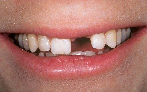Tìm hiểu thông tin - Trồng răng có ảnh hưởng gì không? 1
