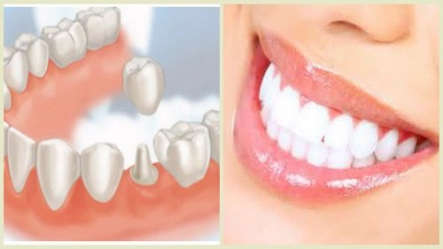 Trồng răng có chân răng thực hiện được không? 2
