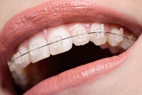 Bảng giá chi phí niềng răng mới nhất tại nha khoa 1