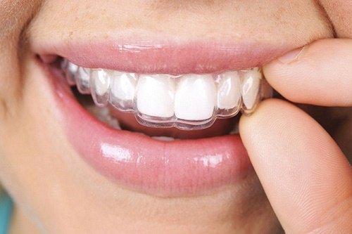 Bảng giá chi phí niềng răng mới nhất tại nha khoa 2