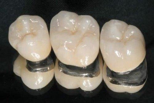 Làm răng sứ titan - Thông tin bạn nên biết khi lựa chọn 1