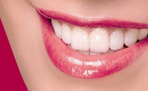 Làm răng sứ titan - Thông tin bạn nên biết khi lựa chọn 2