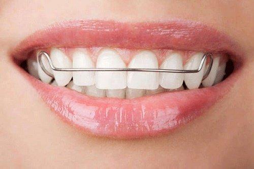 Niềng răng phải đeo hàm duy trì bao lâu? Cần lưu ý gì? 2