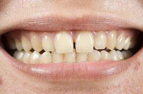 Răng sứ bị thưa là do đâu? Cần làm gì để khắc phục? 1
