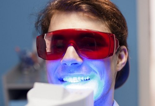 Tẩy trắng răng bằng đèn plasma giá bao nhiêu? Cập nhật giá 2019 1