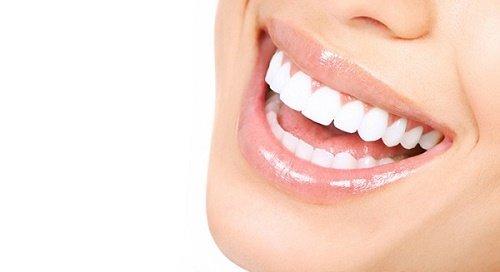 Tẩy trắng răng bằng đèn plasma giá bao nhiêu? Cập nhật giá 2019 2