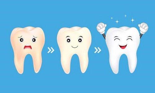 Những ưu điểm công nghệ tẩy trắng răng brite smile 1