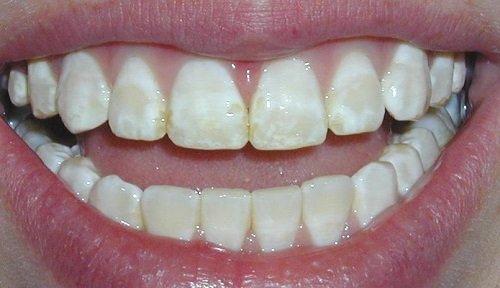 Tác hại của việc tẩy trắng răng sai cách là gì? 2