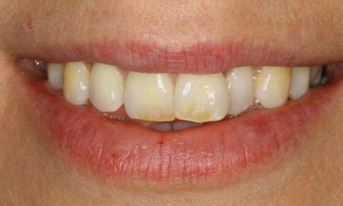 Tác hại của việc tẩy trắng răng sai cách là gì? 3