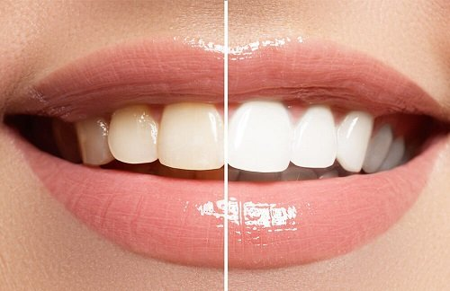 Tẩy trắng răng có ảnh hưởng gì không? Đâu là điều bạn cần lưu ý 1