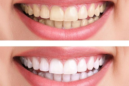 Tẩy trắng răng có ảnh hưởng gì không? Đâu là điều bạn cần lưu ý 2