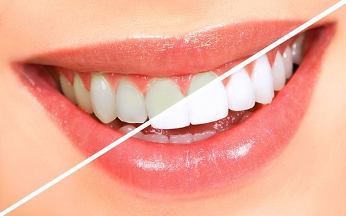 Tẩy trắng răng có ảnh hưởng gì không? Đâu là điều bạn cần lưu ý 3