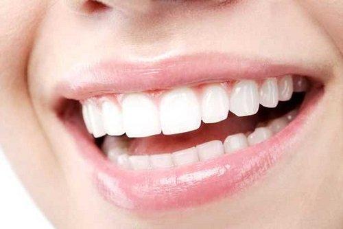 Có nên tẩy trắng răng nhiều lần? 5 lý do bạn nên biết 2