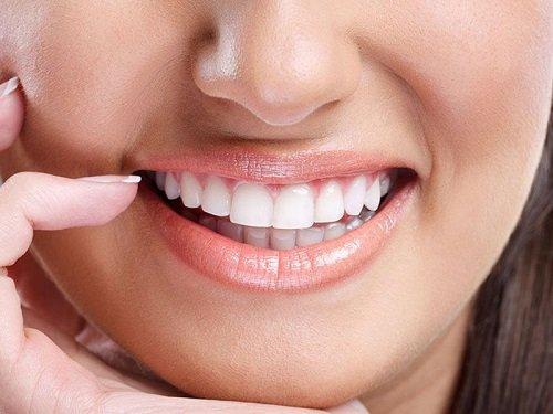 Có nên tẩy trắng răng nhiều lần? 5 lý do bạn nên biết 3
