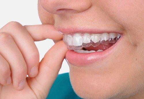 Tẩy trắng răng bằng máng bao nhiêu tiền? Bảng giá ưu đãi 1