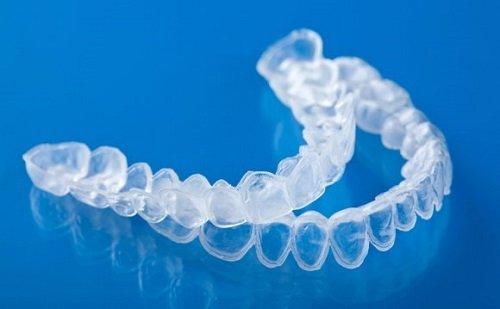 Tẩy trắng răng bằng máng bao nhiêu tiền? Bảng giá ưu đãi 2