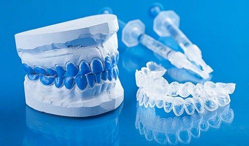 Tẩy trắng răng bằng máng bao nhiêu tiền? Bảng giá ưu đãi 3