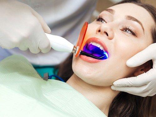 Tẩy trắng răng bằng than hoạt tính cực kỳ đơn giản 3