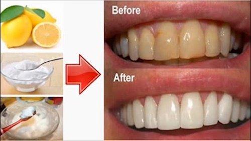3 cách tẩy trắng răng trong 1 tuần hiệu quả vượt trội 2