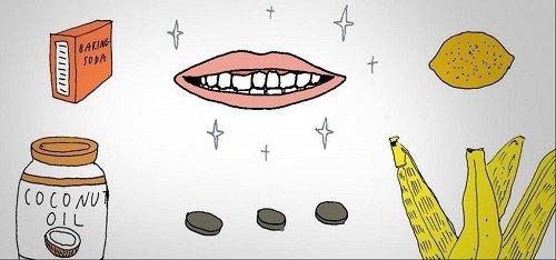 3 cách tẩy trắng răng trong 1 tuần hiệu quả vượt trội 4