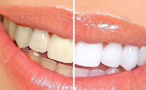 3 cách tẩy trắng răng trong 1 tuần hiệu quả vượt trội 5