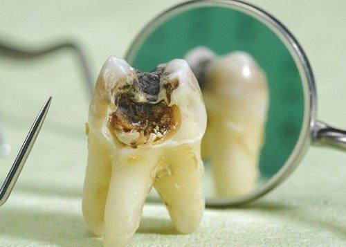 Nhổ răng giá bao nhiêu tiền? Tham khảo chi phí mới 1