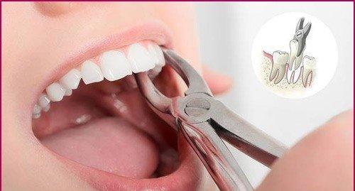 Nhổ răng giá bao nhiêu tiền? Tham khảo chi phí mới 3