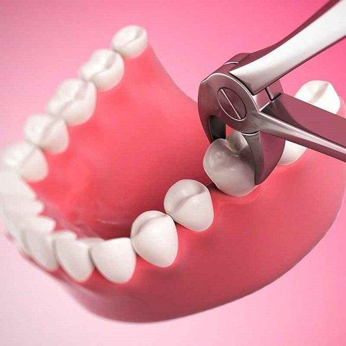 Nhổ răng sâu giá bao nhiêu tiền tại bệnh viện? 3