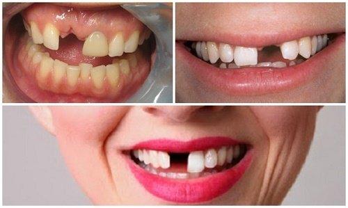 Cấy ghép implant cho răng cửa - Quy trình thực hiện 1